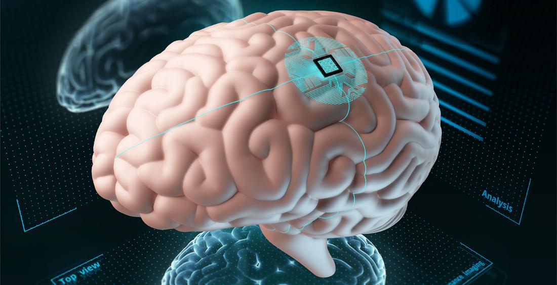 Implantes cerebrales electrónicos: más cerca de lo que creemos