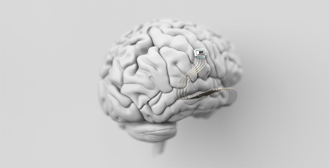 Implantes neuronales: ¿Podemos leer y escribir datos en los cerebros humanos?